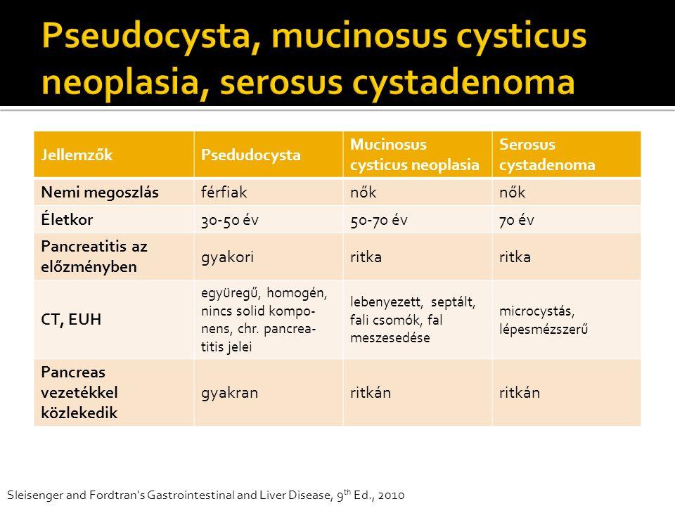 JellemzőkPsedudocysta Mucinosus cysticus neoplasia Serosus cystadenoma Nemi megoszlásférfiaknők Életkor30-50 év50-70 év70 év Pancreatitis az előzményben gyakoriritka CT, EUH együregű, homogén, nincs solid kompo- nens, chr.