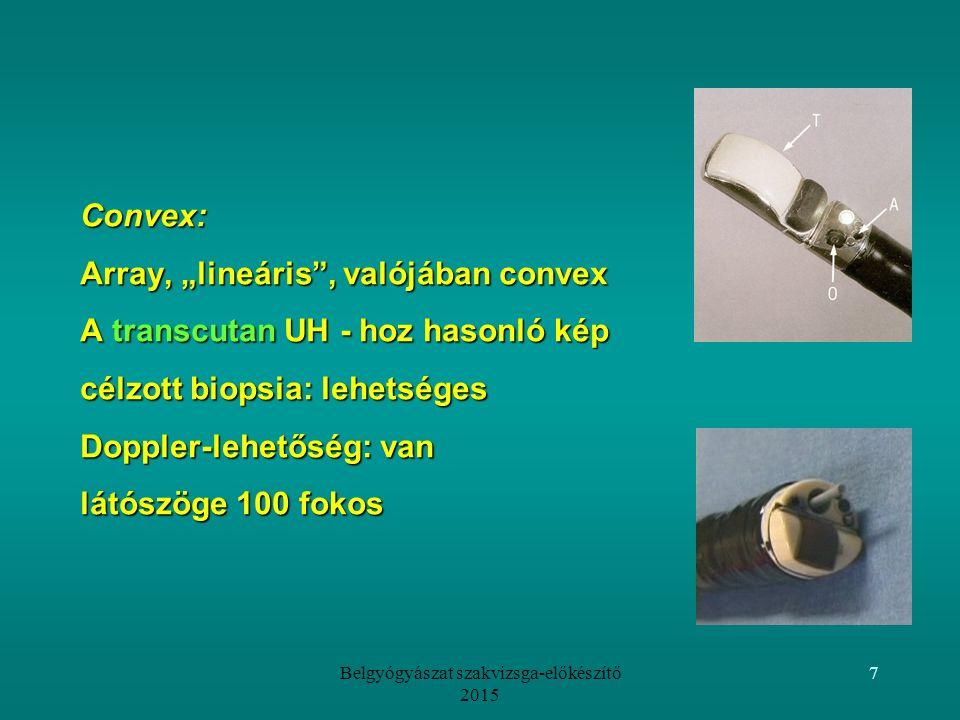 """Belgyógyászat szakvizsga-előkészítő 2015 7 Convex: Array, """"lineáris , valójában convex A transcutan UH - hoz hasonló kép célzott biopsia: lehetséges Doppler-lehetőség: van látószöge 100 fokos"""