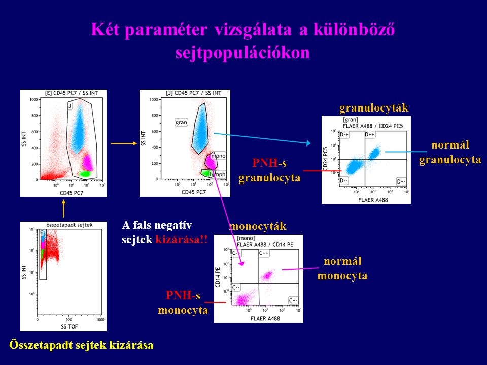 PNH-s monocyta monocyták normál monocyta granulocyták normál granulocyta PNH-s granulocyta Összetapadt sejtek kizárása Két paraméter vizsgálata a különböző sejtpopulációkon A fals negatív sejtek kizárása!!