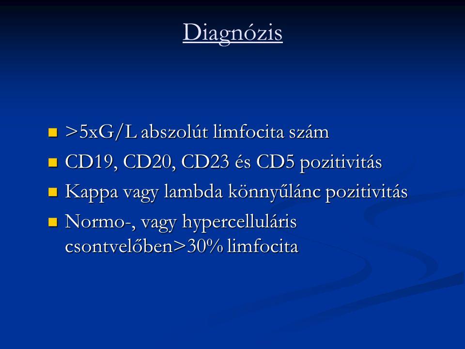 Diagnózis >5xG/L abszolút limfocita szám >5xG/L abszolút limfocita szám CD19, CD20, CD23 és CD5 pozitivitás CD19, CD20, CD23 és CD5 pozitivitás Kappa vagy lambda könnyűlánc pozitivitás Kappa vagy lambda könnyűlánc pozitivitás Normo-, vagy hypercelluláris csontvelőben>30% limfocita Normo-, vagy hypercelluláris csontvelőben>30% limfocita
