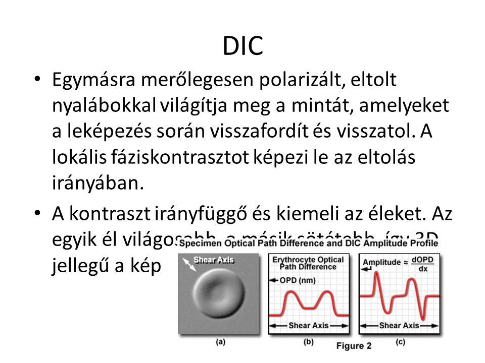 DIC Egymásra merőlegesen polarizált, eltolt nyalábokkal világítja meg a mintát, amelyeket a leképezés során visszafordít és visszatol. A lokális fázis