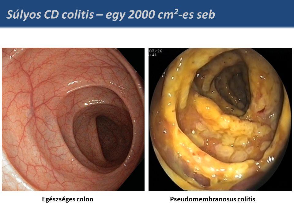 Súlyos CD colitis – egy 2000 cm 2 -es seb Egészséges colonPseudomembranosus colitis