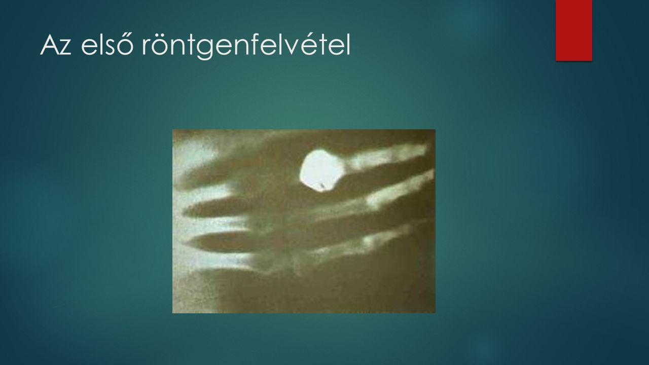 Az első röntgenfelvétel