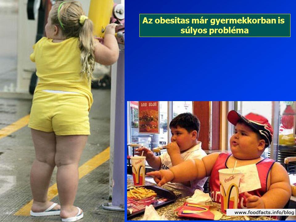 Az obesitas már gyermekkorban is súlyos probléma