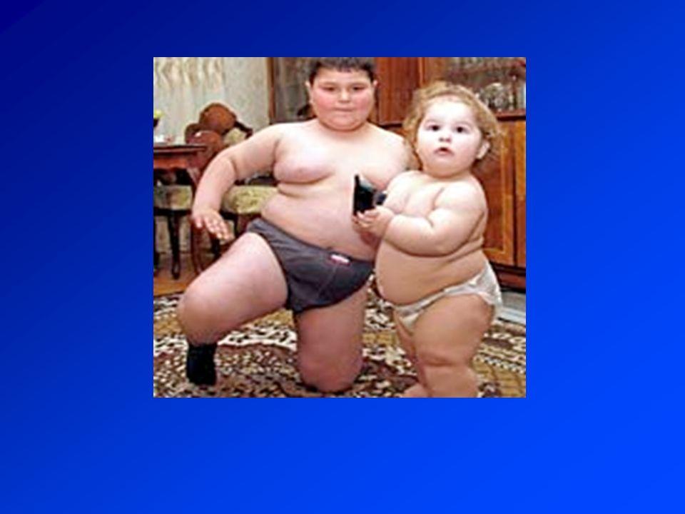 Az elhízás kezelésének 4 pillére 1.Diéta 2. Életmód váltás 3.