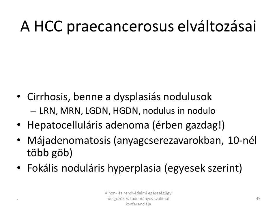 .49 A HCC praecancerosus elváltozásai Cirrhosis, benne a dysplasiás nodulusok – LRN, MRN, LGDN, HGDN, nodulus in nodulo Hepatocelluláris adenoma (érben gazdag!) Májadenomatosis (anyagcserezavarokban, 10-nél több göb) Fokális noduláris hyperplasia (egyesek szerint) A hon- és rendvédelmi egészségügyi dolgozók V.
