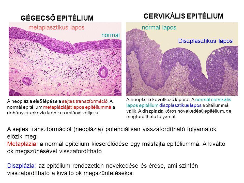 A neoplázia első lépése a sejtes transzformáció.