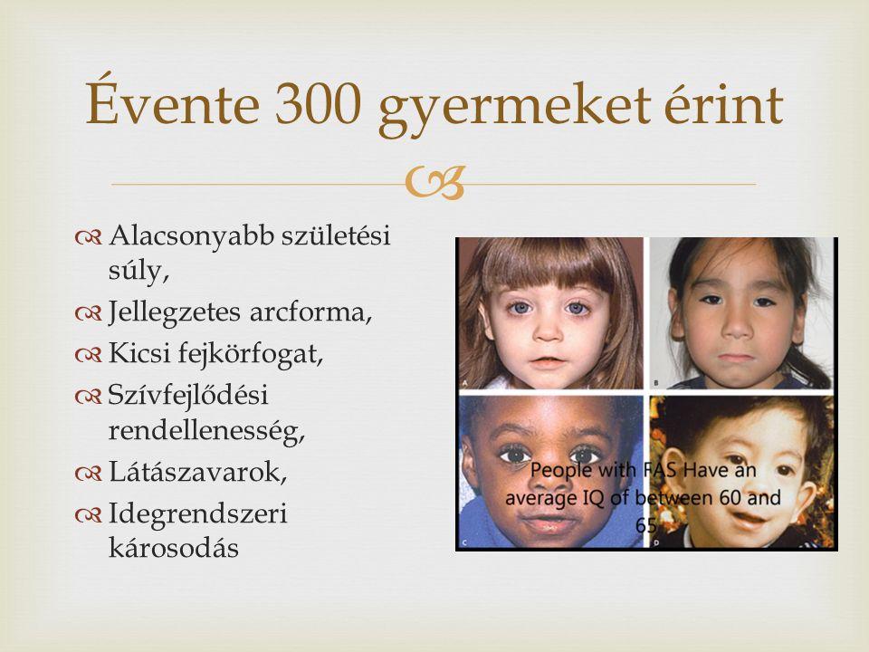  Évente 300 gyermeket érint  Alacsonyabb születési súly,  Jellegzetes arcforma,  Kicsi fejkörfogat,  Szívfejlődési rendellenesség,  Látászavarok,  Idegrendszeri károsodás