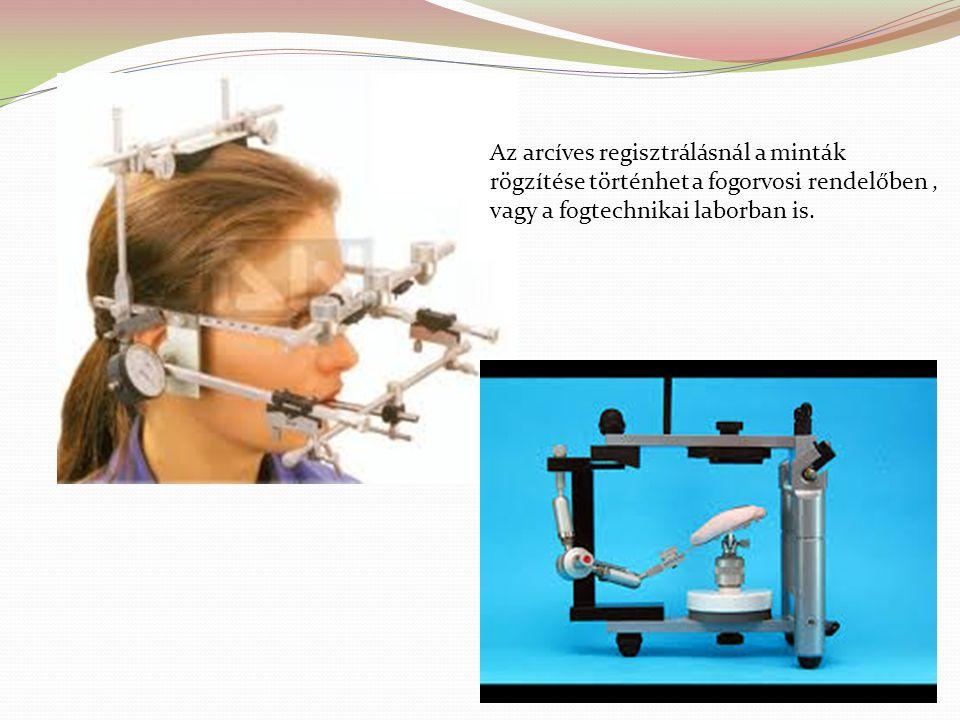 Az arcíves regisztrálásnál a minták rögzítése történhet a fogorvosi rendelőben, vagy a fogtechnikai laborban is.