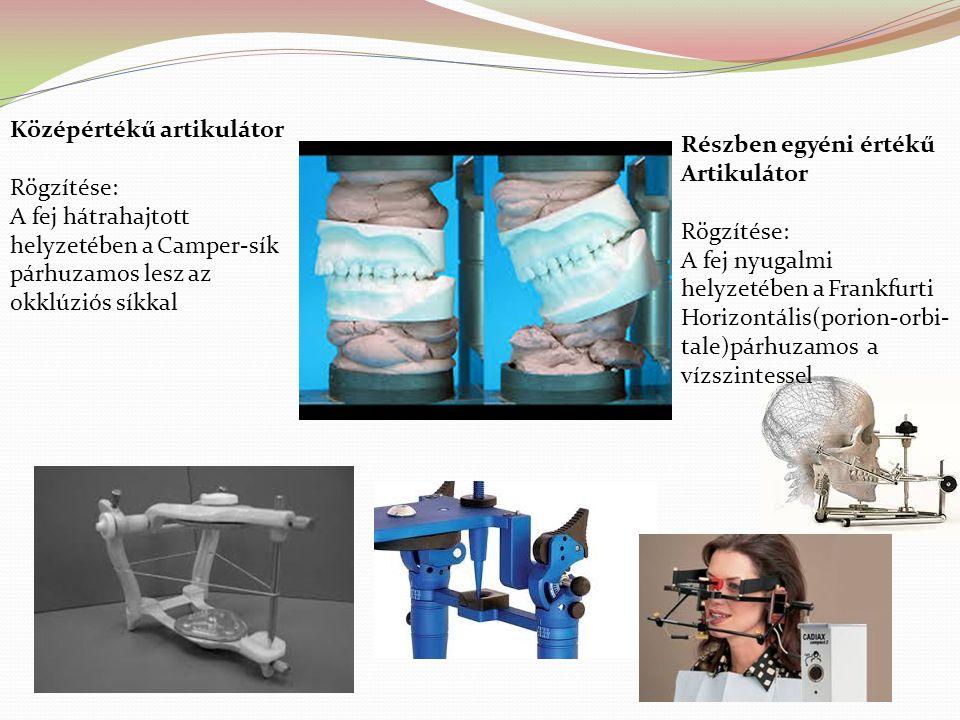 Artikulátorok felépítésük szerint lehetnek : Arcon(articulátor condylare),mely megegyezik az állkapocsízület anatómiai felépítésével, azaz a mandibuláris rögzítő részhez csatlakozik a fejecset modellező elem Non –arconnál a helyzet fordított, tehát a maxilláris részhez tartozik a fejecset imitáló rész,míg az ízületi árkot,melynek rendszerint egy rés alakú nyílással egyezik meg, az alsó rögzítő részen találjuk.