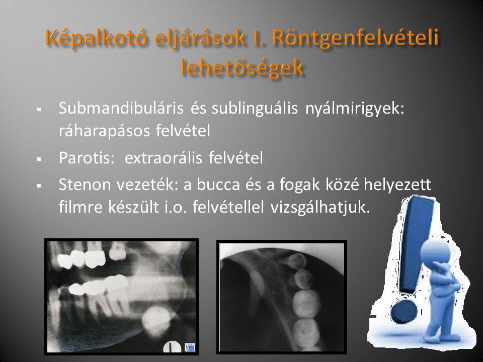  Submandibuláris és sublinguális nyálmirigyek: ráharapásos felvétel  Parotis: extraorális felvétel  Stenon vezeték: a bucca és a fogak közé helyezett filmre készült i.o.