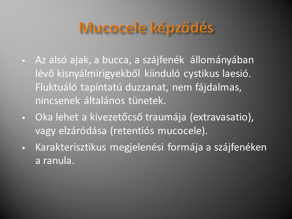  Az alsó ajak, a bucca, a szájfenék állományában lévő kisnyálmirigyekből kiinduló cystikus laesió.