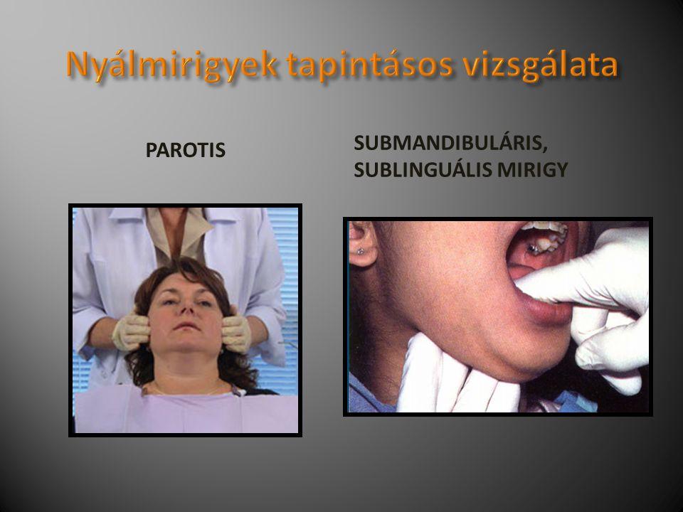 PAROTIS SUBMANDIBULÁRIS, SUBLINGUÁLIS MIRIGY