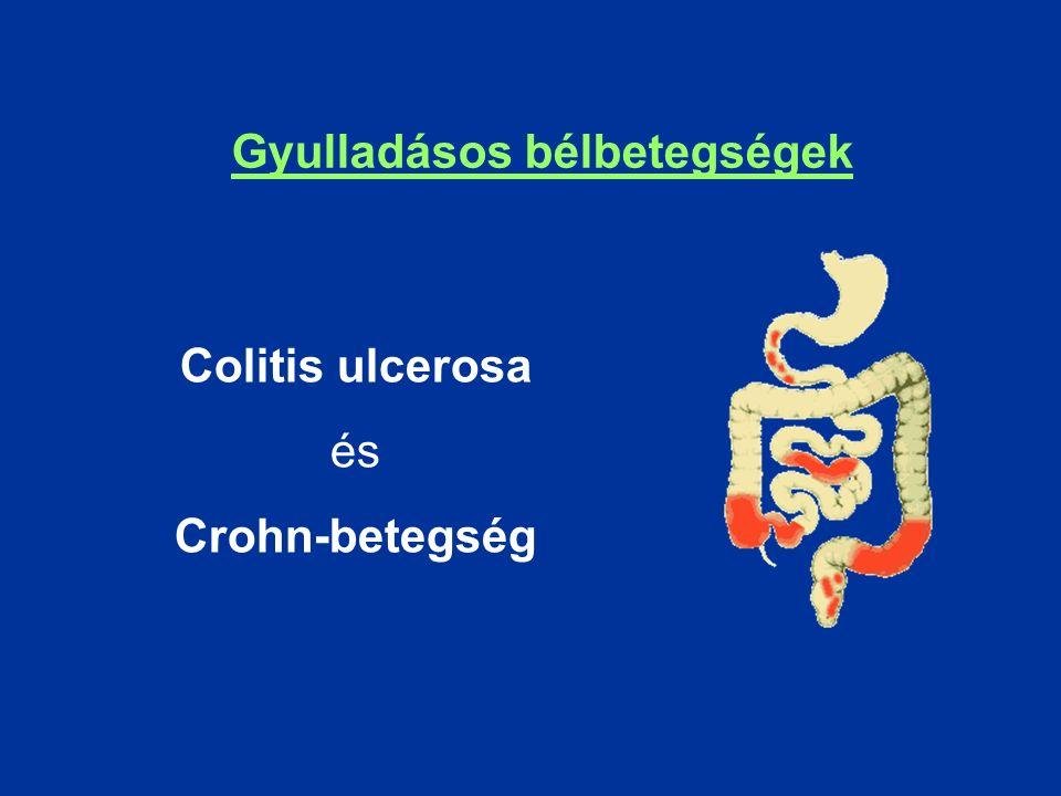 Colitis ulcerosa és Crohn-betegség