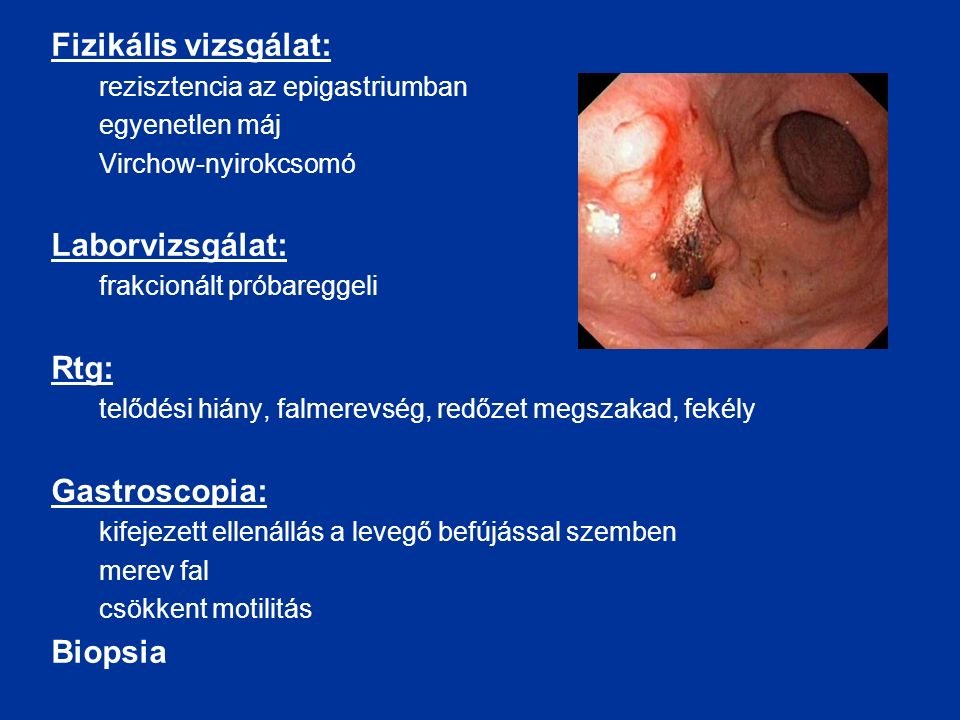 Fizikális vizsgálat: rezisztencia az epigastriumban egyenetlen máj Virchow-nyirokcsomó Laborvizsgálat: frakcionált próbareggeli Rtg: telődési hiány, falmerevség, redőzet megszakad, fekély Gastroscopia: kifejezett ellenállás a levegő befújással szemben merev fal csökkent motilitás Biopsia
