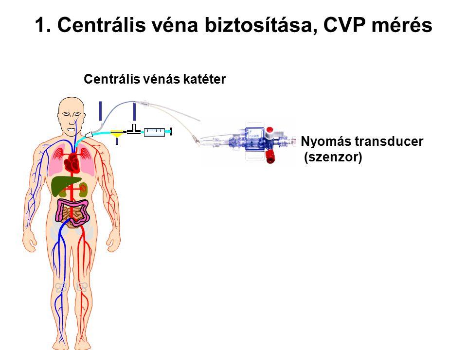 Centrális vénás katéter 1. Centrális véna biztosítása, CVP mérés Nyomás transducer (szenzor)