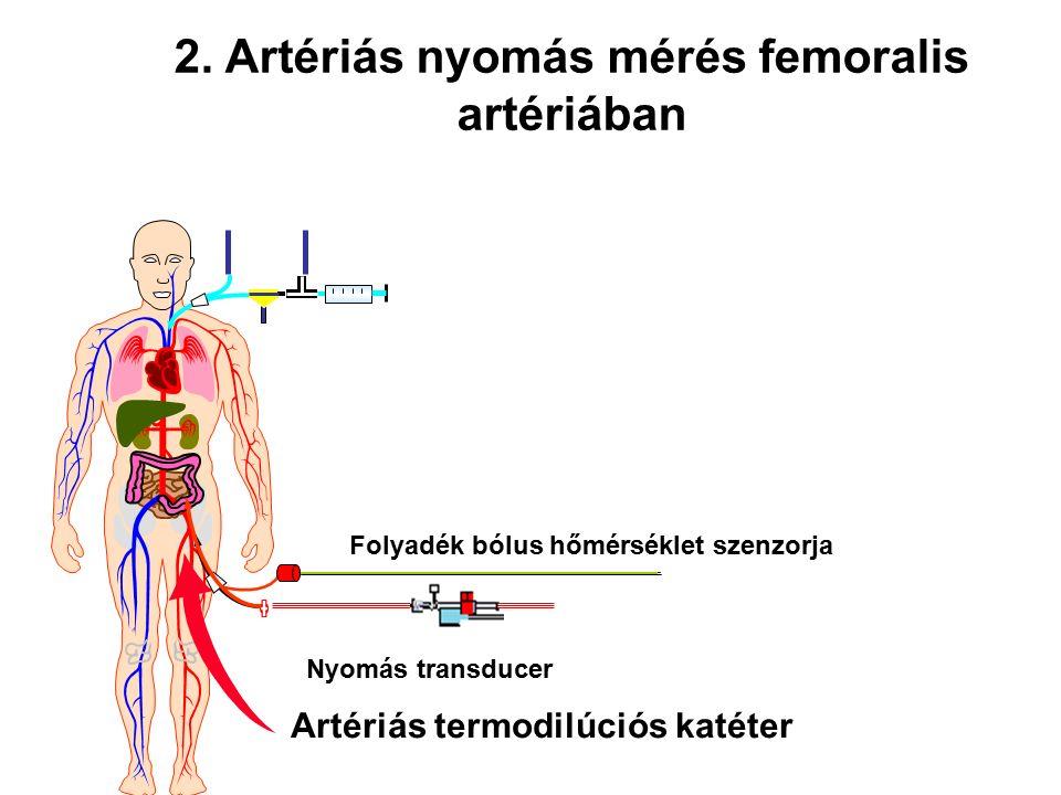 Artériás termodilúciós katéter Folyadék bólus hőmérséklet szenzorja Nyomás transducer 2. Artériás nyomás mérés femoralis artériában