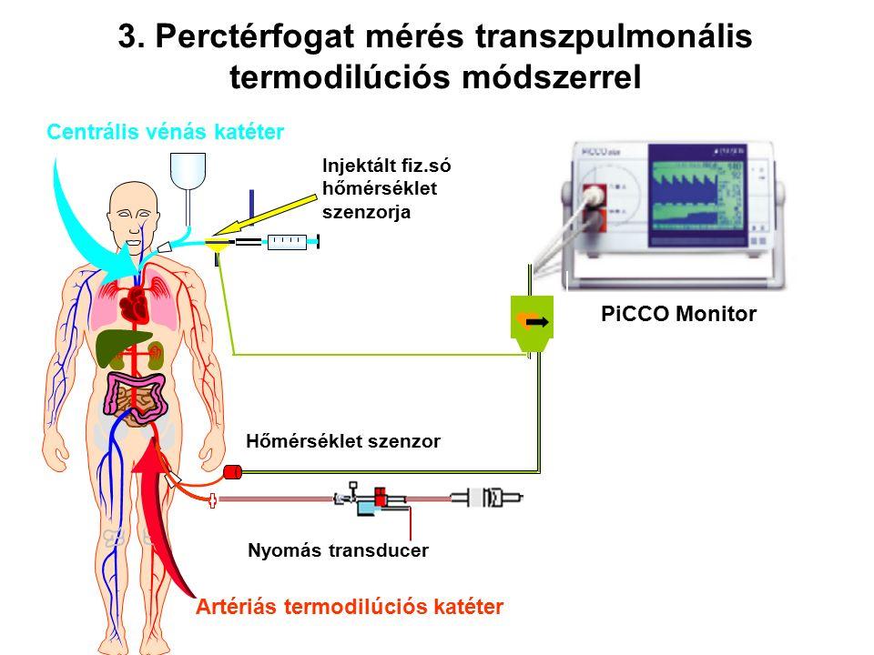 PiCCO Monitor Artériás termodilúciós katéter Hőmérséklet szenzor Nyomás transducer Centrális vénás katéter Injektált fiz.só hőmérséklet szenzorja 3.
