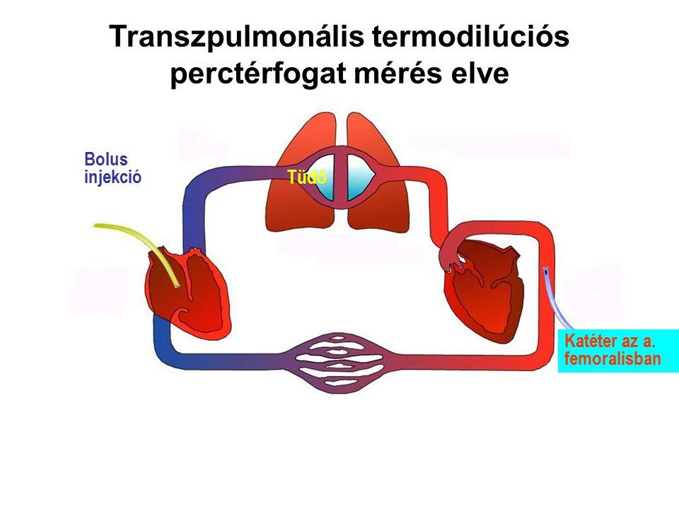 Bolus injekció Tüdő Katéter az a. femoralisban Transzpulmonális termodilúciós perctérfogat mérés elve