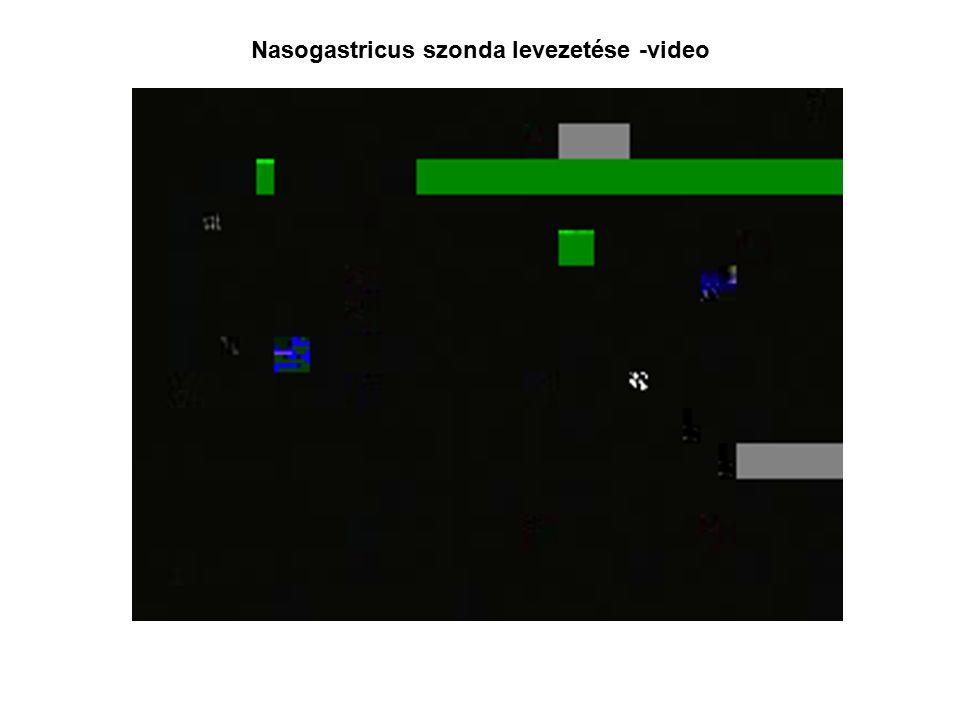Nasogastricus szonda levezetése -video