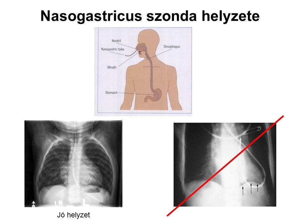 Nasogastricus szonda helyzete Jó helyzet