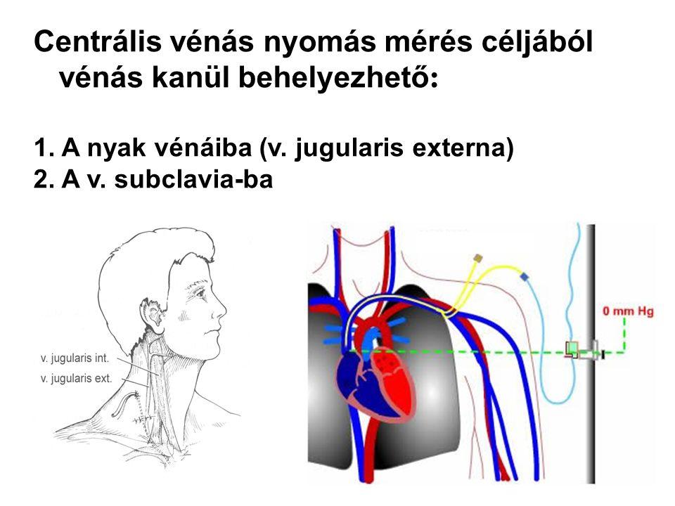 Centrális vénás nyomás mérés céljából vénás kanül behelyezhető : 1. A nyak vénáiba (v. jugularis externa) 2. A v. subclavia-ba