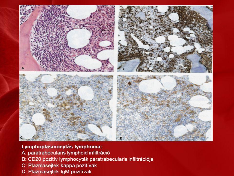Lymphoplasmocytás lymphoma: A: paratrabecularis lymphoid infiltráció B: CD20 pozitív lymphocyták paratrabecularis infiltrációja C: Plazmasejtek kappa pozitívak D: Plazmasejtek IgM pozitívak