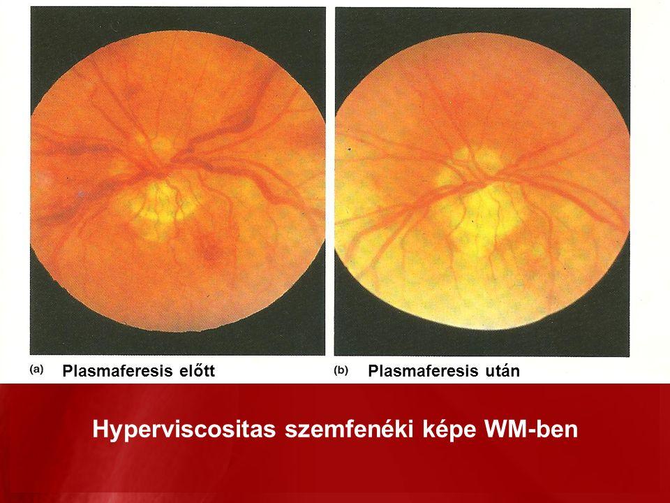 Plasmaferesis előttPlasmaferesis után Hyperviscositas szemfenéki képe WM-ben