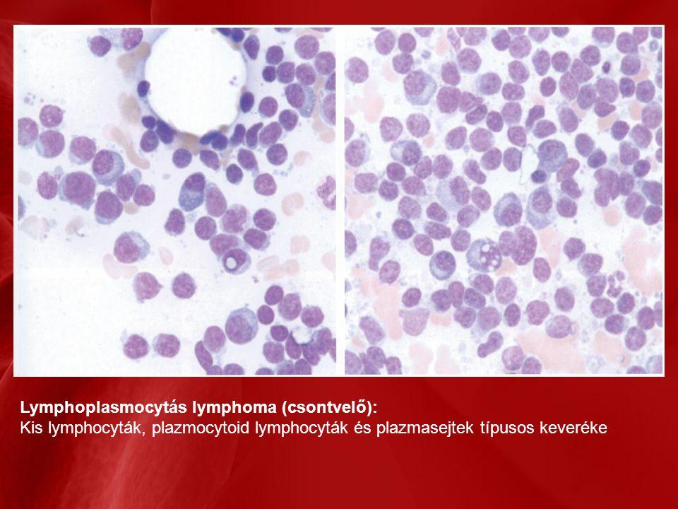 Lymphoplasmocytás lymphoma (csontvelő): Kis lymphocyták, plazmocytoid lymphocyták és plazmasejtek típusos keveréke
