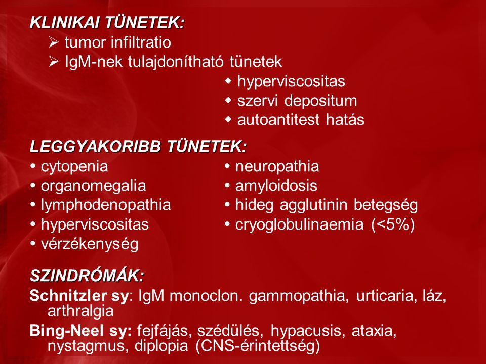 KLINIKAI TÜNETEK:  tumor infiltratio  IgM-nek tulajdonítható tünetek  hyperviscositas  szervi depositum  autoantitest hatás LEGGYAKORIBB TÜNETEK:  cytopenia  neuropathia  organomegalia  amyloidosis  lymphodenopathia  hideg agglutinin betegség  hyperviscositas  cryoglobulinaemia (<5%)  vérzékenységSZINDRÓMÁK: Schnitzler sy: IgM monoclon.