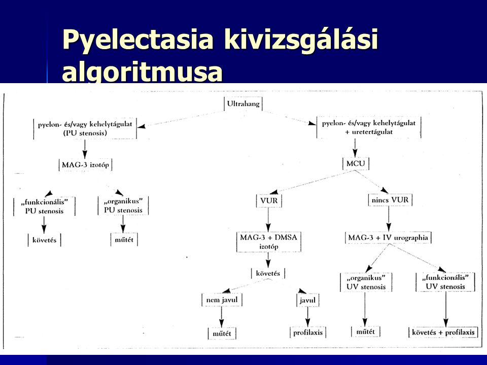 Pyelectasia kivizsgálási algoritmusa