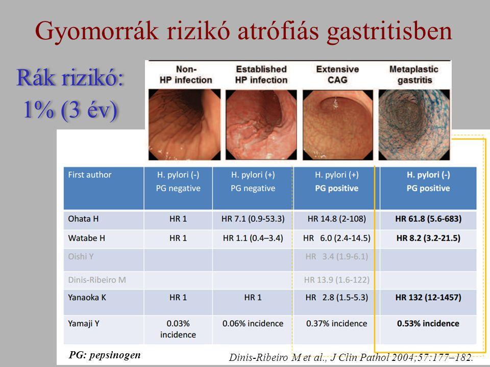 Gyomorrák rizikó atrófiás gastritisben PG: pepsinogen Dinis-Ribeiro M et al., J Clin Pathol 2004;57:177–182.