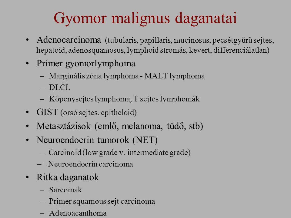 Gyomor malignus daganatai Adenocarcinoma (tubularis, papillaris, mucinosus, pecsétgyűrű sejtes, hepatoid, adenosquamosus, lymphoid stromás, kevert, differenciálatlan) Primer gyomorlymphoma –Marginális zóna lymphoma - MALT lymphoma –DLCL –Köpenysejtes lymphoma, T sejtes lymphomák GIST (orsó sejtes, epitheloid) Metasztázisok (emlő, melanoma, tüdő, stb) Neuroendocrin tumorok (NET) –Carcinoid (low grade v.