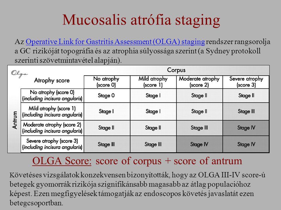 Mucosalis atrófia staging OLGA Score: score of corpus + score of antrum Az Operative Link for Gastritis Assessment (OLGA) staging rendszer rangsorolja a GC rizikóját topográfia és az atrophia súlyossága szerint (a Sydney protokoll szerinti szövetmintavétel alapján).