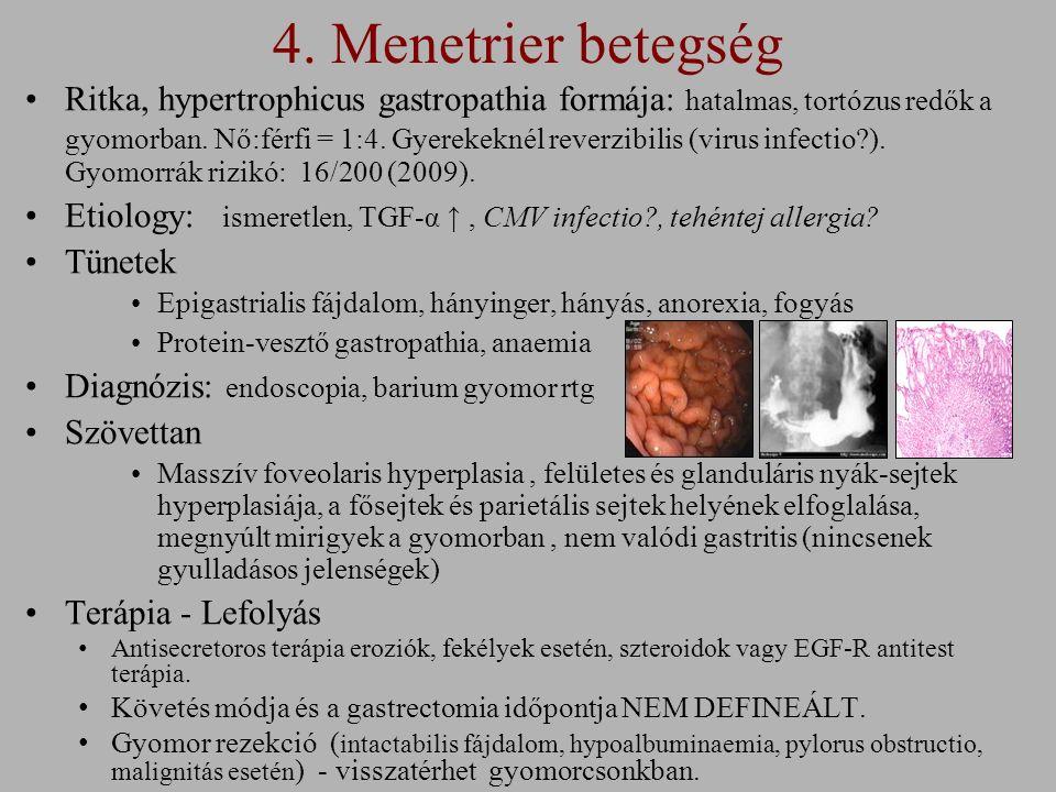 4. Menetrier betegség Ritka, hypertrophicus gastropathia formája: hatalmas, tortózus redők a gyomorban. Nő:férfi = 1:4. Gyerekeknél reverzibilis (viru