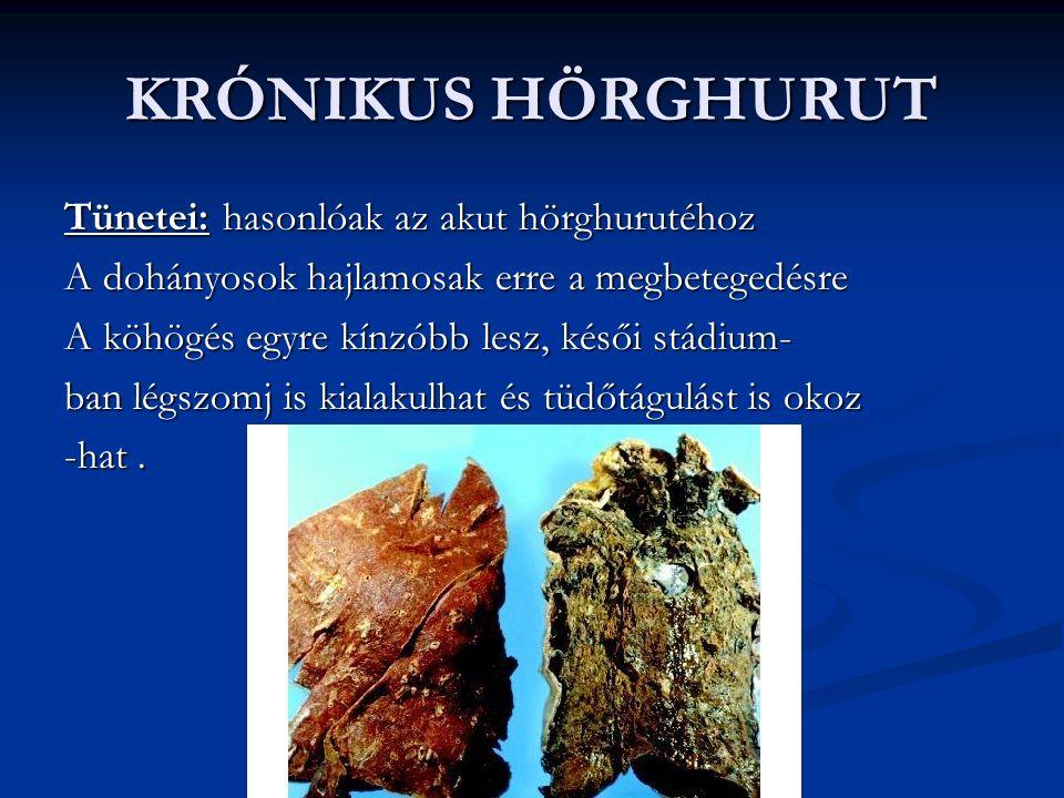 KRÓNIKUS HÖRGHURUT Tünetei: hasonlóak az akut hörghurutéhoz A dohányosok hajlamosak erre a megbetegedésre A köhögés egyre kínzóbb lesz, késői stádium- ban légszomj is kialakulhat és tüdőtágulást is okoz -hat.
