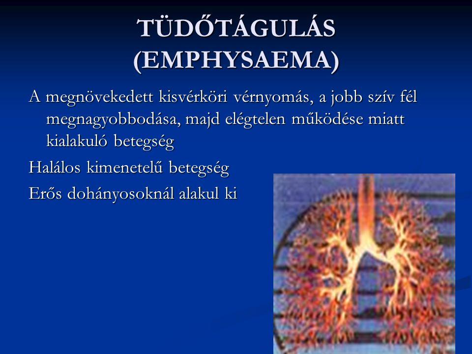 TÜDŐTÁGULÁS (EMPHYSAEMA) A megnövekedett kisvérköri vérnyomás, a jobb szív fél megnagyobbodása, majd elégtelen működése miatt kialakuló betegség Halálos kimenetelű betegség Erős dohányosoknál alakul ki