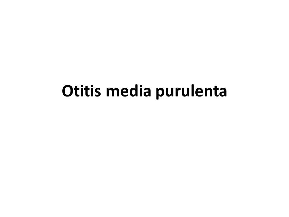 Otitis media purulenta