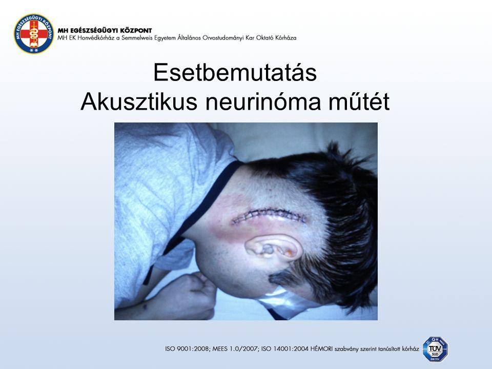 Esetbemutatás Akusztikus neurinóma műtét