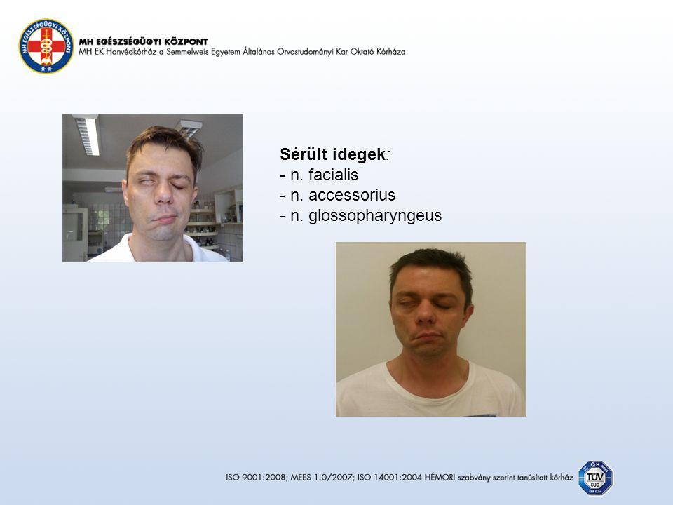 Sérült idegek: - n. facialis - n. accessorius - n. glossopharyngeus
