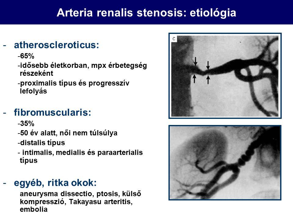 Arteria renalis stenosis: etiológia -atheroscleroticus: -65% -idősebb életkorban, mpx érbetegség részeként -proximalis típus és progresszív lefolyás -fibromuscularis: -35% -50 év alatt, női nem túlsúlya -distalis típus - intimalis, medialis és paraarterialis típus -egyéb, ritka okok: aneurysma dissectio, ptosis, külső kompresszió, Takayasu arteritis, embolia