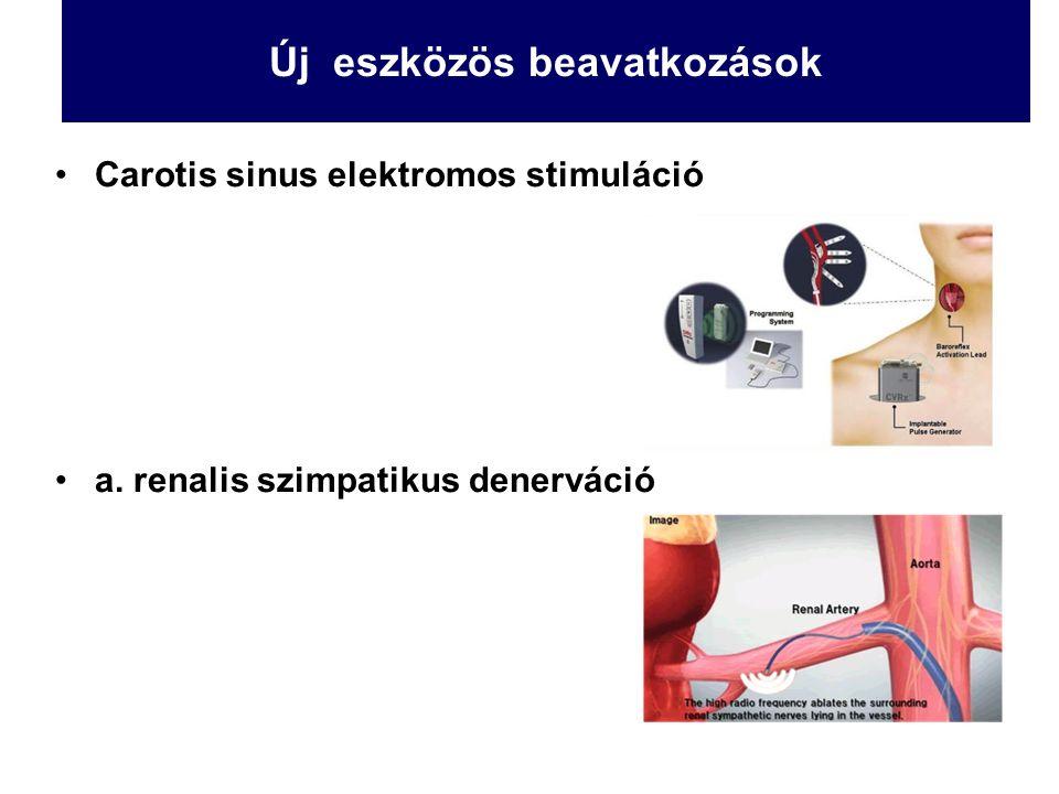 Új eszközös beavatkozások Carotis sinus elektromos stimuláció a. renalis szimpatikus denerváció
