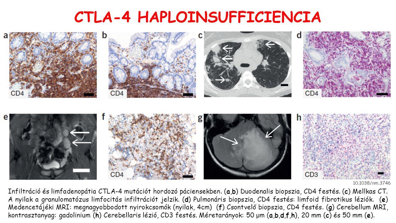 10.1038/nm.3746 CTLA-4 HAPLOINSUFFICIENCIA Infiltráció és limfadenopátia CTLA-4 mutációt hordozó páciensekben.