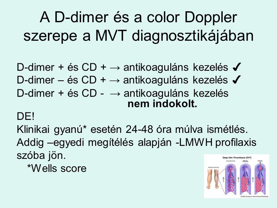 A D-dimer és a color Doppler szerepe a MVT diagnosztikájában D-dimer + és CD + → antikoaguláns kezelés ✔ D-dimer – és CD + → antikoaguláns kezelés ✔ D-dimer + és CD - → antikoaguláns kezelés nem indokolt.