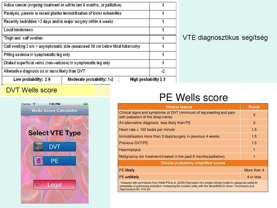 DVT Wells score VTE diagnosztikus segítség