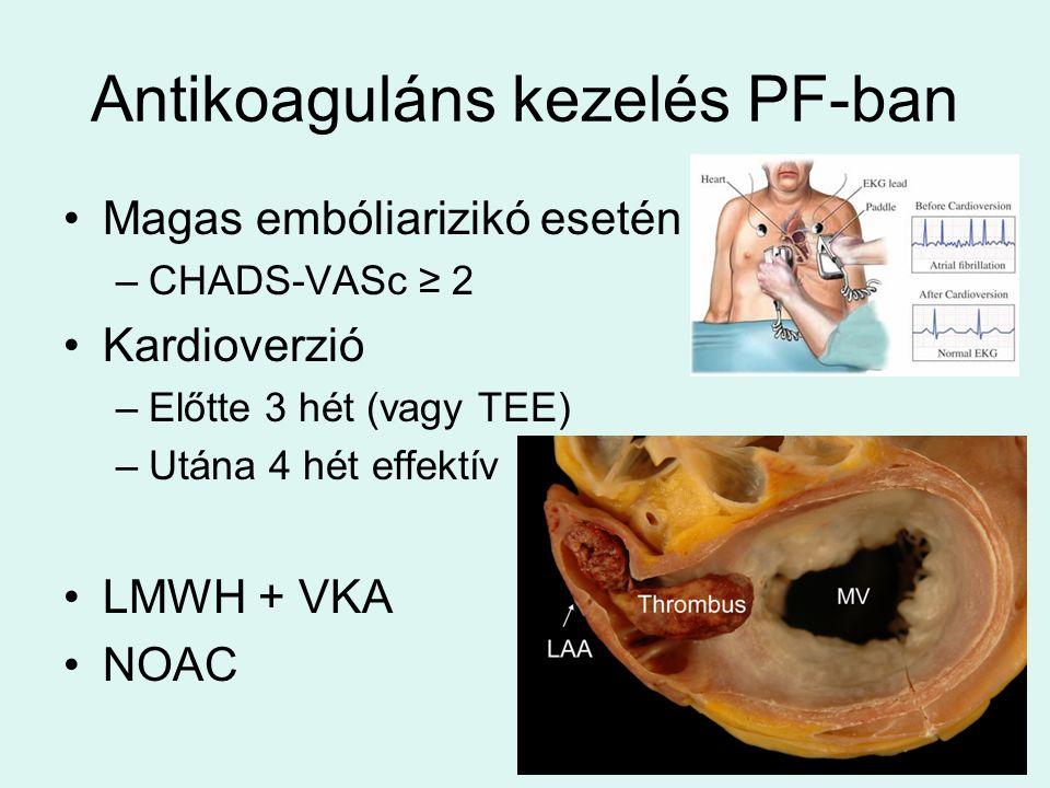 Antikoaguláns kezelés PF-ban Magas embóliarizikó esetén –CHADS-VASc ≥ 2 Kardioverzió –Előtte 3 hét (vagy TEE) –Utána 4 hét effektív LMWH + VKA NOAC