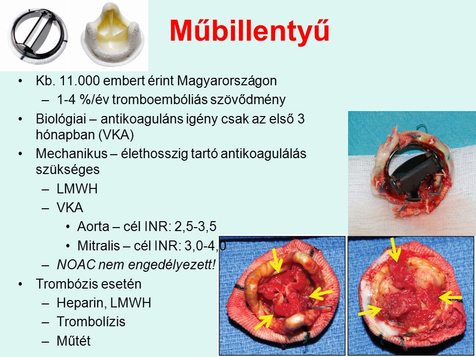 Műbillentyű Kb. 11.000 embert érint Magyarországon –1-4 %/év tromboembóliás szövődmény Biológiai – antikoaguláns igény csak az első 3 hónapban (VKA) M