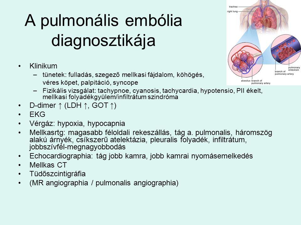 A pulmonális embólia diagnosztikája Klinikum –tünetek: fulladás, szegező mellkasi fájdalom, köhögés, véres köpet, palpitáció, syncope –Fizikális vizsgálat: tachypnoe, cyanosis, tachycardia, hypotensio, PII ékelt, mellkasi folyadékgyülem/infiltrátum szindróma D-dimer ↑ (LDH ↑, GOT ↑) EKG Vérgáz: hypoxia, hypocapnia Mellkasrtg: magasabb féloldali rekeszállás, tág a.