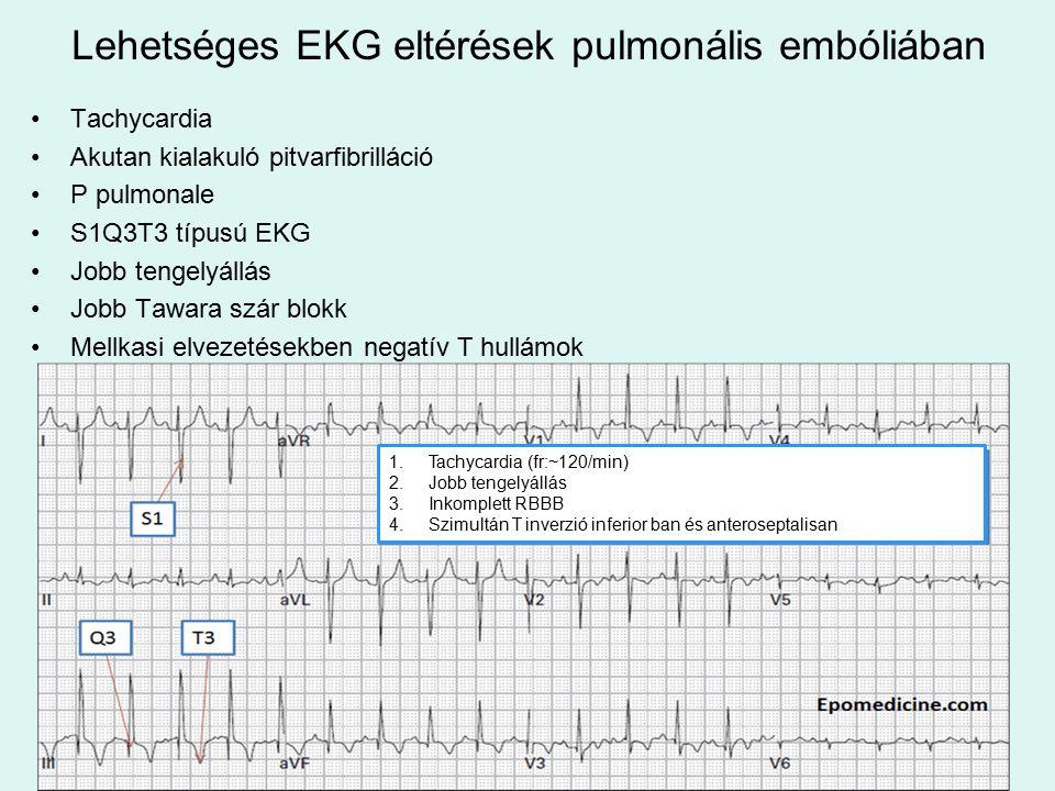 Lehetséges EKG eltérések pulmonális embóliában Tachycardia Akutan kialakuló pitvarfibrilláció P pulmonale S1Q3T3 típusú EKG Jobb tengelyállás Jobb Tawara szár blokk Mellkasi elvezetésekben negatív T hullámok 1.Tachycardia (fr:~120/min) 2.Jobb tengelyállás 3.Inkomplett RBBB 4.Szimultán T inverzió inferior ban és anteroseptalisan