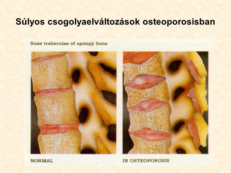 Súlyos csogolyaelváltozások osteoporosisban